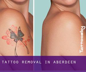 Tattoo Removal in Aberdeen