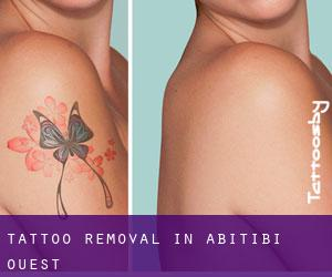 Tattoo Removal in Abitibi-Ouest