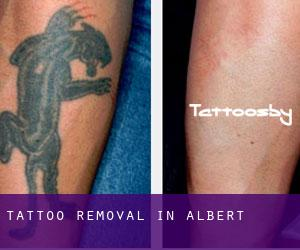 Tattoo Removal in Albert