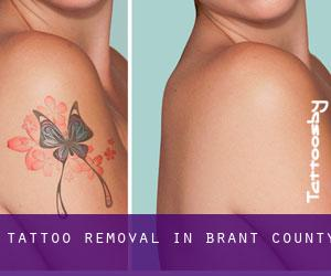 Tattoo Removal in Brant County