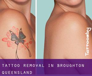 Tattoo Removal in Broughton (Queensland)