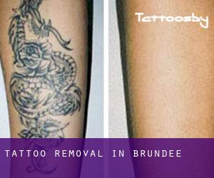 Tattoo Removal in Brundee