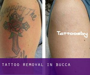 Tattoo Removal in Bucca