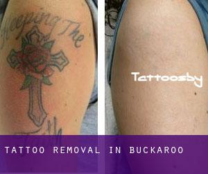 Tattoo Removal in Buckaroo