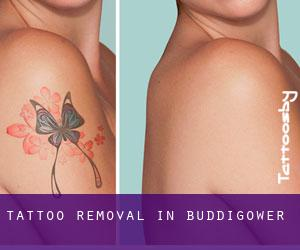 Tattoo Removal in Buddigower