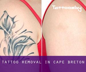Tattoo Removal in Cape Breton