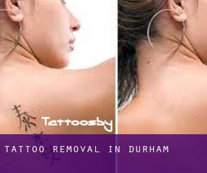 Tattoo Removal in Durham