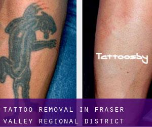 Tattoo Removal in Fraser Valley Regional District