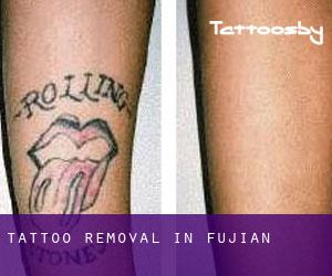 Tattoo Removal in Fujian