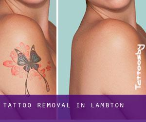 Tattoo Removal in Lambton