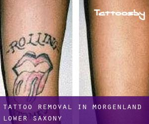 Tattoo Removal in Morgenland (Lower Saxony)