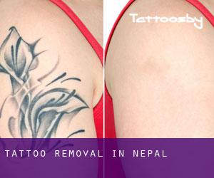 Tattoo Removal in Nepal