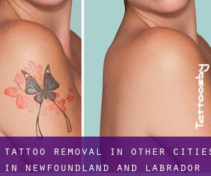 Tattoo Removal in Other Cities in Newfoundland and Labrador (Newfoundland and Labrador)