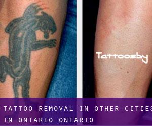 Tattoo Removal in Other Cities in Ontario (Ontario)