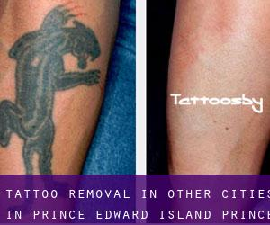 Tattoo Removal in Other Cities in Prince Edward Island (Prince Edward Island)