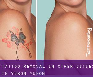 Tattoo Removal in Other Cities in Yukon (Yukon)