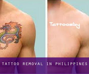Tattoo Removal in Philippines