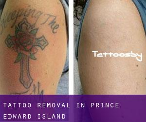 Tattoo Removal in Prince Edward Island