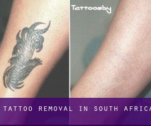Tattoo Removal in South Africa