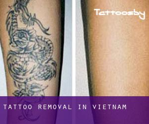 Tattoo Removal in Vietnam
