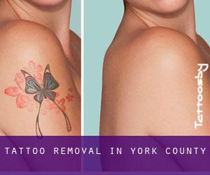 Tattoo Removal in York County
